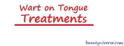 common warts on tongue