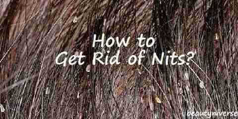 how to get rid of nits simple steps to be free of nits