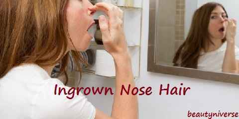 ingrown nose hair pain
