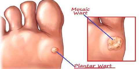 plantar wart surgery removal
