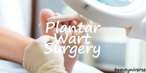 plantar wart surgery