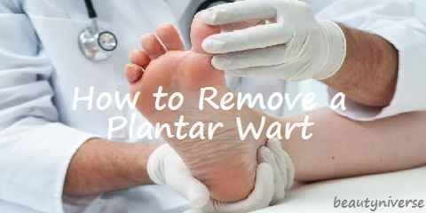 surgery for plantar wart