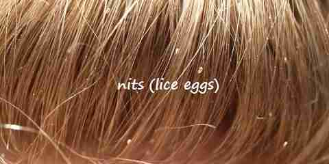 head lice eggs pictures of nits