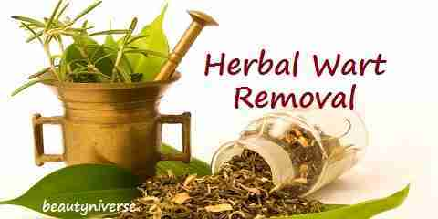 herbal wart removal