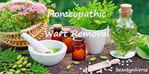 homeopathic wart removal