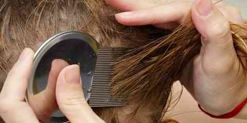how to check for head lice