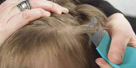 how to check for lice in hair