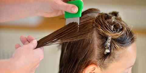 permanent lice removal get rid of hair lice permanently by home remedies