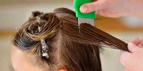 ways to get rid of lice in one day treatment